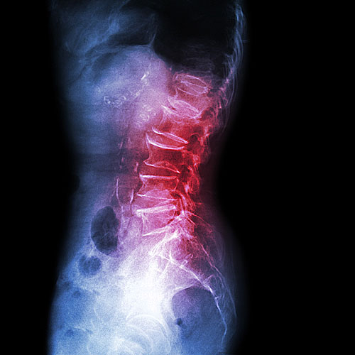 Spondylolisthesis spine surgeon