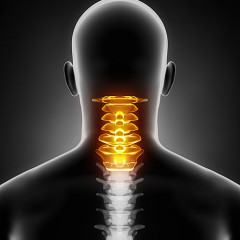 artificial cervical discs surgery