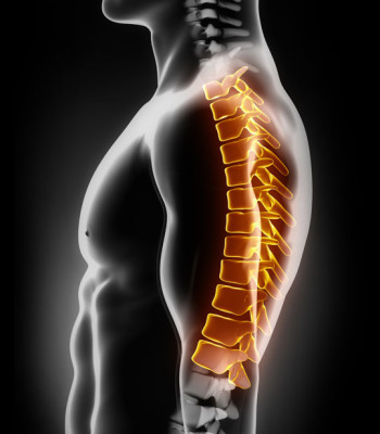 HERNIATED CERVICAL DISCS SURGEON NEW YORK