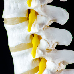 spinal-fractures-