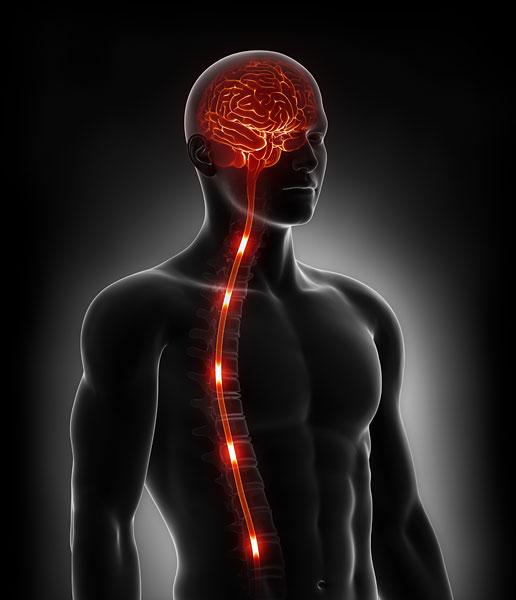 Spinal Stimulation Surgery New York